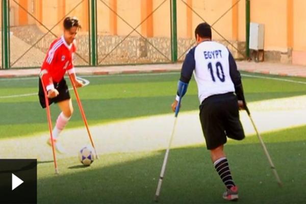 """أول فريق كرة قدم بـ""""ساق"""" واحدة في مصر"""
