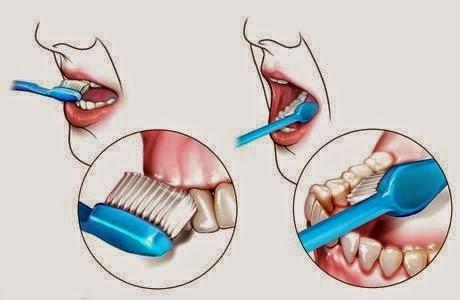 طريقه لتنضيف الاسنان